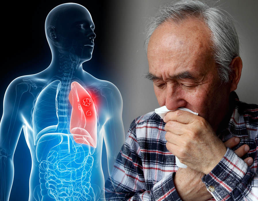 Обнинские ученые разработали средство по предупреждению вирусной пневмонии