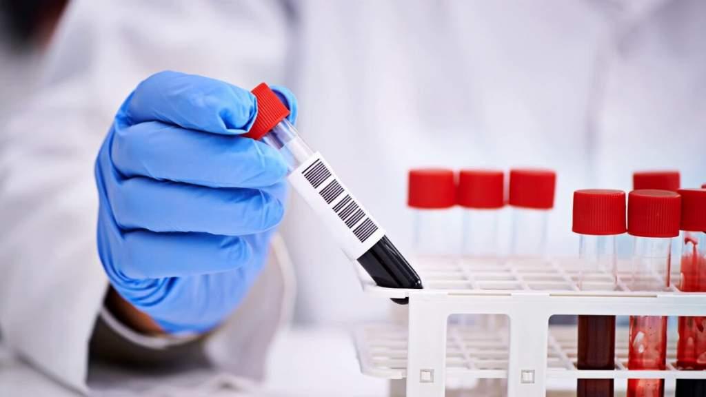 В Калуге зафиксирован 6 случай коронавируса