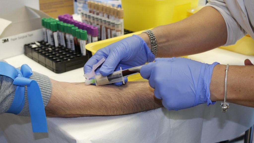 В Калужской области планируют начать массовое тестирование на антитела к covid-19
